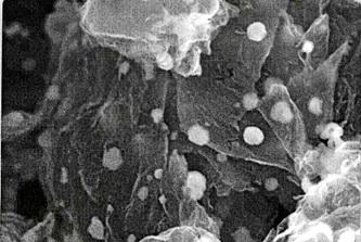 Anodo compuesto de silicio-grafeno para la batería ión litio (microscopio electrónico)